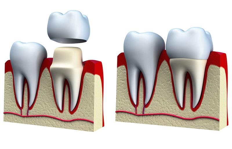 dental_crown_procedure