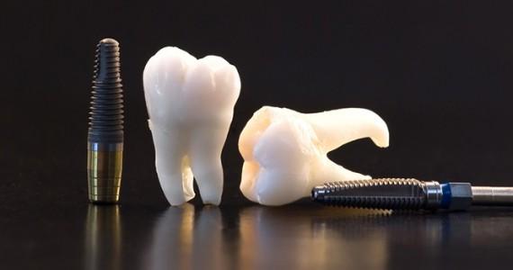 سؤالات مهم در خصوص ایمپلنت دندان